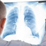 Claiming respiratory disease under workers' compensation in Illinois